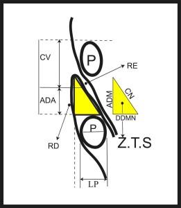 FIGURA 2. Aspecto esquemático da zona triangular de segurança (ZTS): corpo vertebral (CV), altura discal aparente (ADA), pedículo do arco vertebral (P), largura do pedículo do arco vertebral (LP), raízes descendentes (RD), raízes emergentes (RE), altura da dura-máter espinal (ADM) - limite medial, comprimento do nervo espinal (CN) - limite lateral, e distância da dura-máter espinal ao nervo espinal (DDMN) – limite inferior.