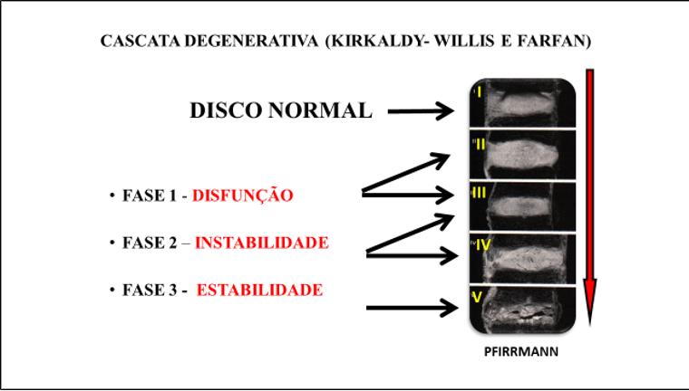Figura 2 : Cascata degenerativa de Kirkaldy-Willis e Farfan com as três fases: disfunção, instabilidade e estabilidade associada a classificação de degeneração de Pfirrmann em cinco estágios.