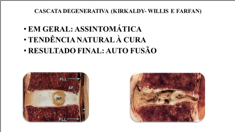 Figura 3 : Cascata degenerativa da doença degenerativa. Note que o resultado final é a auto fusão (imagens: cedidas por Wolfgang Rauschning).