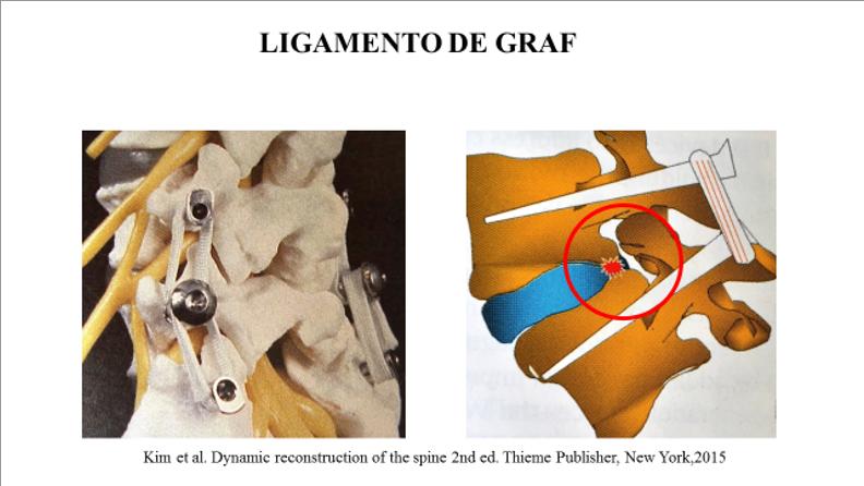Figura 4 : Aspecto em modelo plástico do Ligamento de Graf (esquerda); e aspecto esquemático de Ligamento de Graf mostrando o efeito compressivo no forame intervertebral e no anel fibroso posterior.