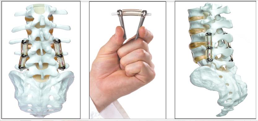 Figura 5 : Aspecto ilustrativo do sistema de estabilização dinâmica da coluna (Dynesys) (canto esquerdo e direito). Centro: mostrando a flexibilidade do sistema. Note o cilindro de plástico (sulene) interposto entre a cabeça dos parafusos e o cordão de polietileno por dentro da mesma.