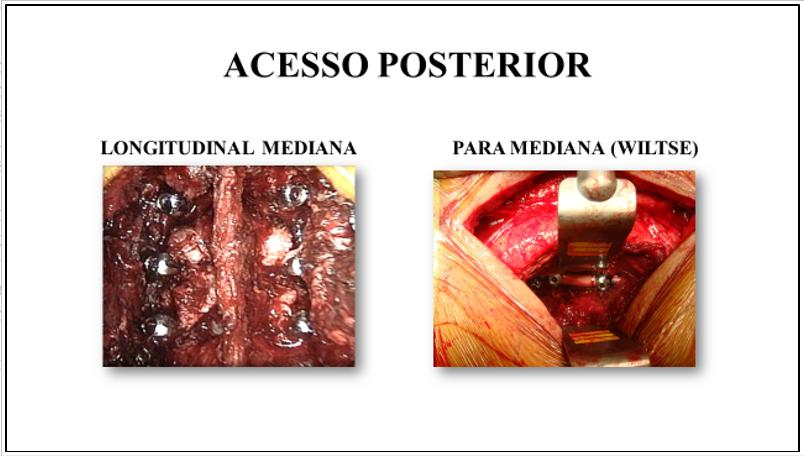 Figura.6 : Aspecto cirúrgico do acesso posterior longitudinal mediano (esquerda) e o acesso longitudinal paramediano (direita).