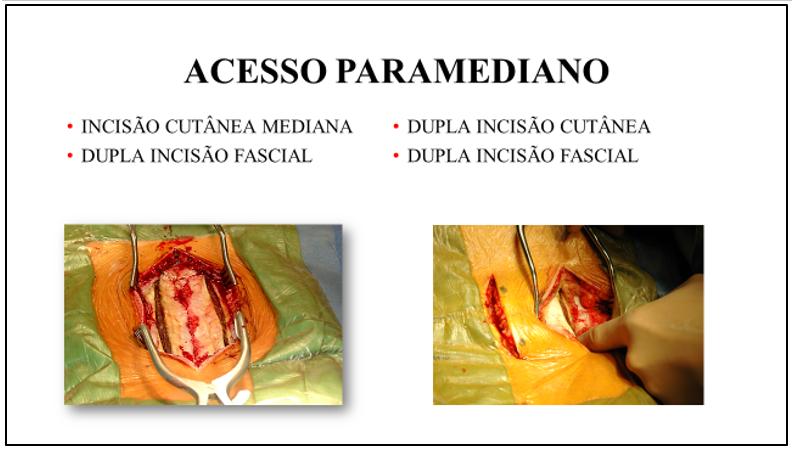 Figura 7 : Aspecto cirúrgico de incisão cutânea longitudinal mediana com dupla incisão na fáscia toraco-lombar (esquerda) e dupla incisão cutânea e fascial (direita).