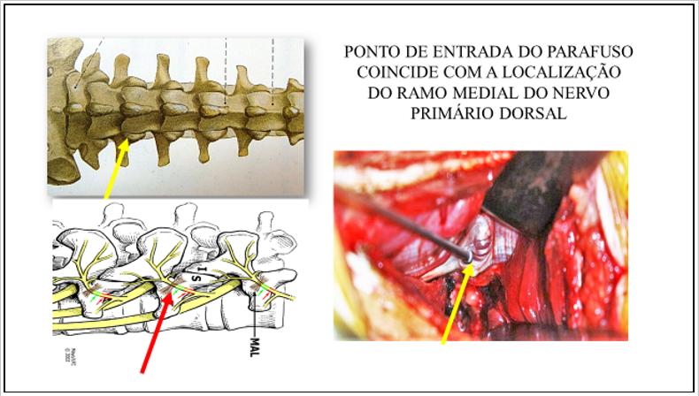 Figura 9 : Referência anatômica (processo mamilar acessório: setas amarelas e vermelha) para a introdução do parafuso pedicular (esquerda superior e direita) e ramo medial do nervo primário dorsal (esquerda inferior).