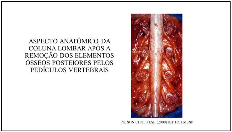 Figura 10 : Aspecto de dissecção anatômica da coluna lombar. Note a relação dos pedículos vertebrais com as estruturas neurais adjacentes. A porção ínferomedial e súperolateral do pedículo tem íntima relação com a raiz nervosa.