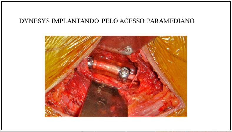 Figura 11 : Aspecto cirúrgico do sistema Dynesys pelo acesso paramediano de Wiltse. Note a cabeça dos parafusos com conector de plástico entre os músculos multifidus (retrator inferior) e o dorsal longo (retrator superior).