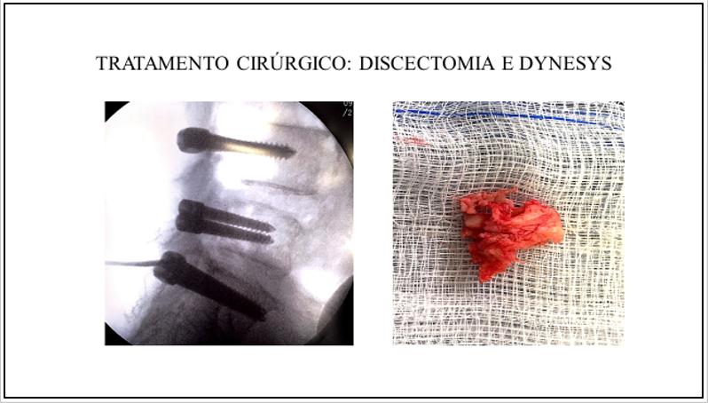 Figura 19 : Aspecto radiológico intra-operatórioa (P) da fixação dinâmica da coluna pelo sistema Dynesys com marcador metálico no espaço interlaminar L5-S1 antes da remoção da hérnia discal (esquerda); aspecto da hérnia discal removida em L5-S1 (direita).