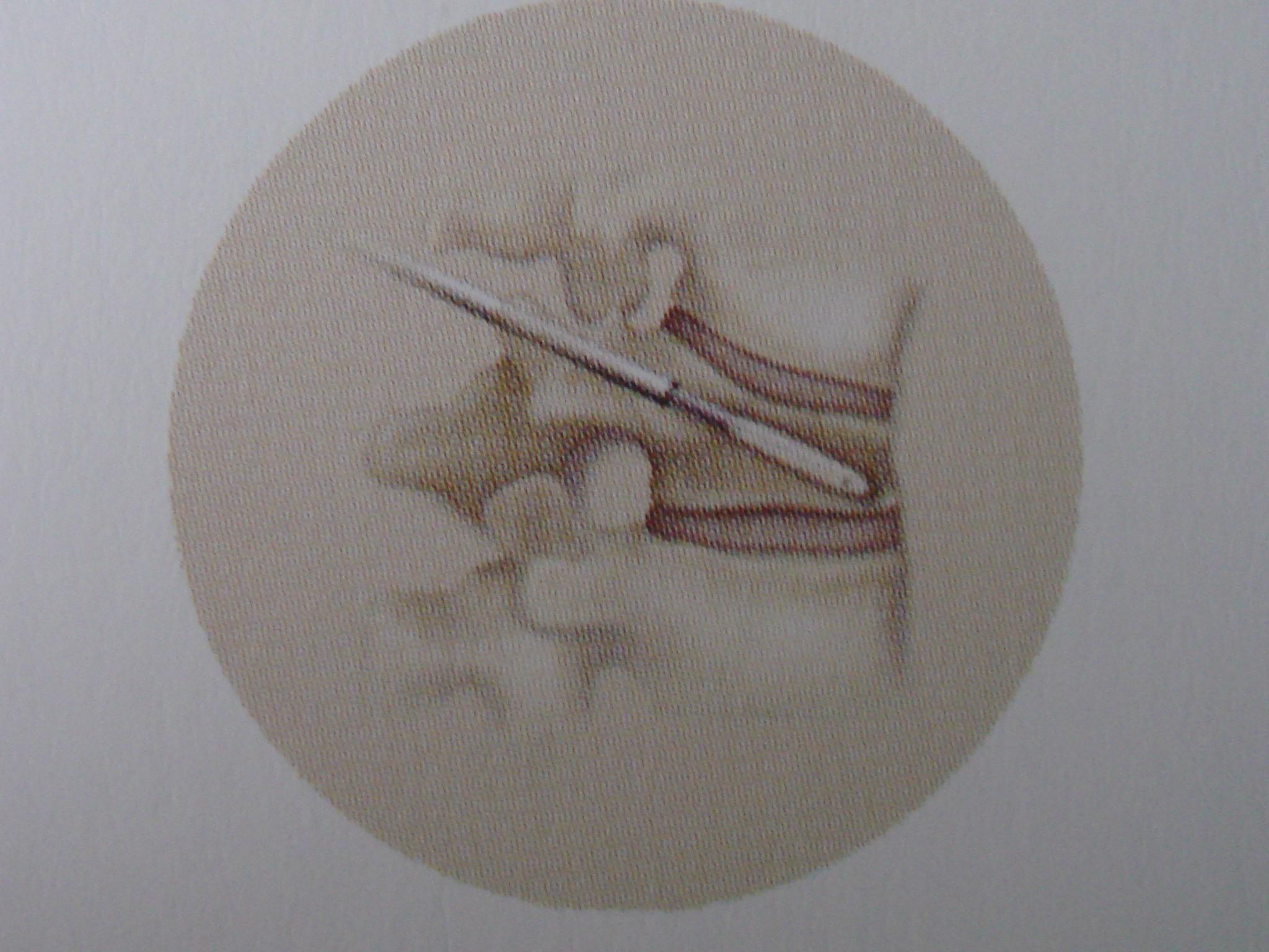 """Aspecto esquemático de introdução de """"balão inflável"""" através da cânula de procedimento (vista em perfil)."""
