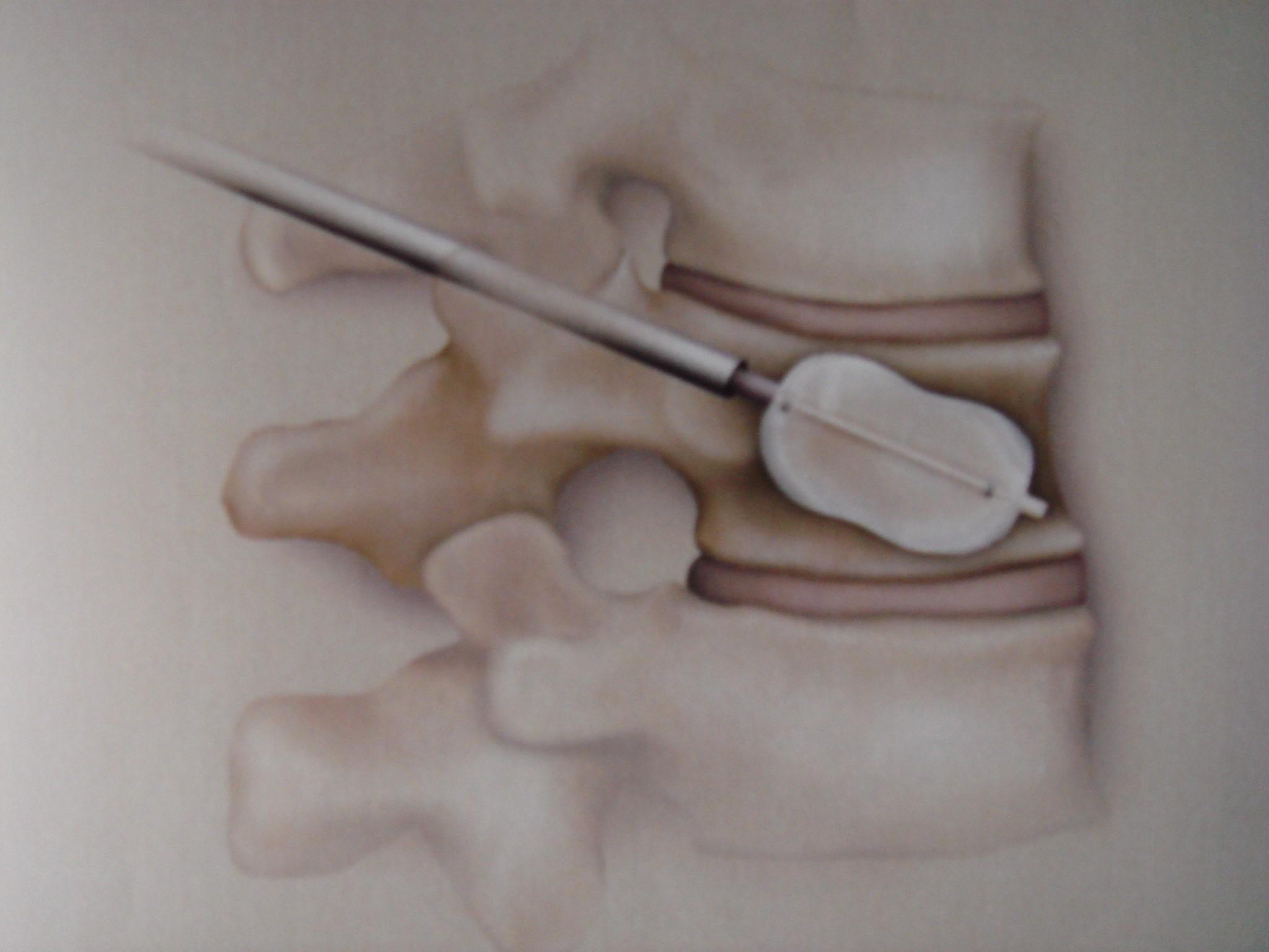 Aspecto esquemático de insuflação de balão para restaurar a altura do corpo vertebral fraturado (vista em perfil).
