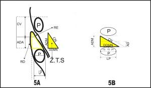 FIGURA 5. Aspecto esquemático comparativo de zonas triangulares de segurança (ZTS): 5A - Choi, P. S. e 5B Mirkovic et al(10). ADM (altura da dura-máter espinal), CN (comprimento do nervo espinal), DDMN (distância da dura-máter espinal ao nervo), AD (altura do disco intervertebral), P (pedículo do arco vertebral) e LP (largura do pedículo do arco vertebral).