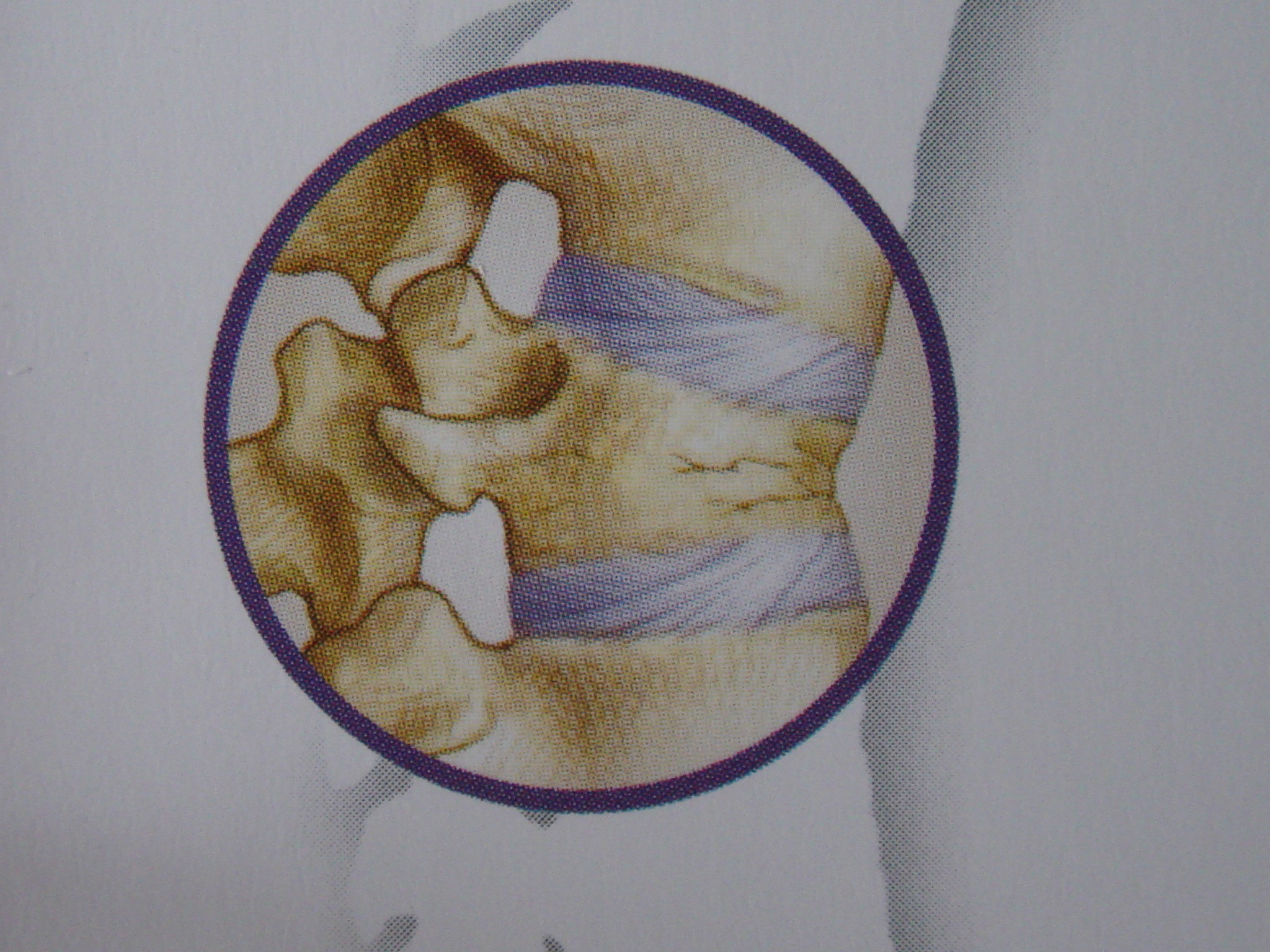 Aspecto esquemático de uma fratura compressiva de uma vértebra osteoporótica (vista em perfil).