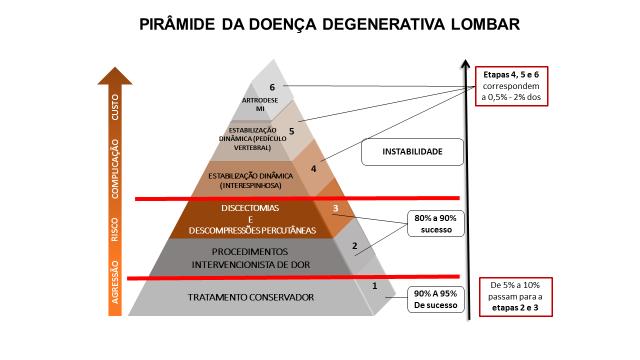 Figura 1 : Pirâmide da doença degenerativa lombar. Note que a FDPV ocupa o quinto estágio.